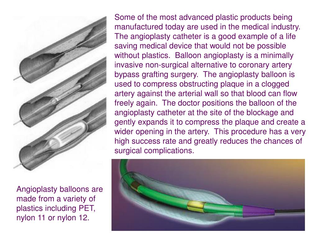 Some of the most advanced plastic products being manufactured today are used in the medical industry.  The angioplasty catheter is a good example of a life saving medical device that would not be possible without plastics.  Balloon angioplasty is a minimally invasive non-surgical alternative to coronary artery bypass grafting surgery.  The angioplasty balloon is used to compress obstructing plaque in a clogged artery against the arterial wall so that blood can flow freely again.  The doctor positions the balloon of the angioplasty catheter at the site of the blockage and gently expands it to compress the plaque and create a wider opening in the artery.  This procedure has a very high success rate and greatly reduces the chances of surgical complications.