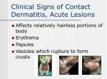 clinical signs of contact dermatitis acute lesions