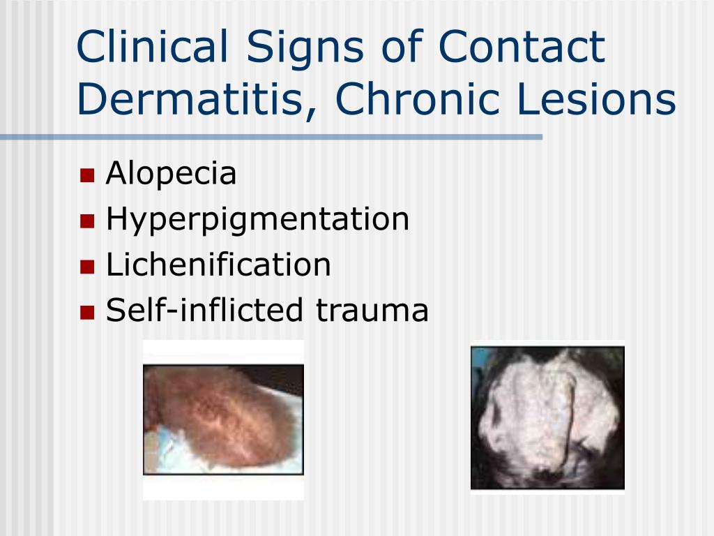 Clinical Signs of Contact Dermatitis, Chronic Lesions