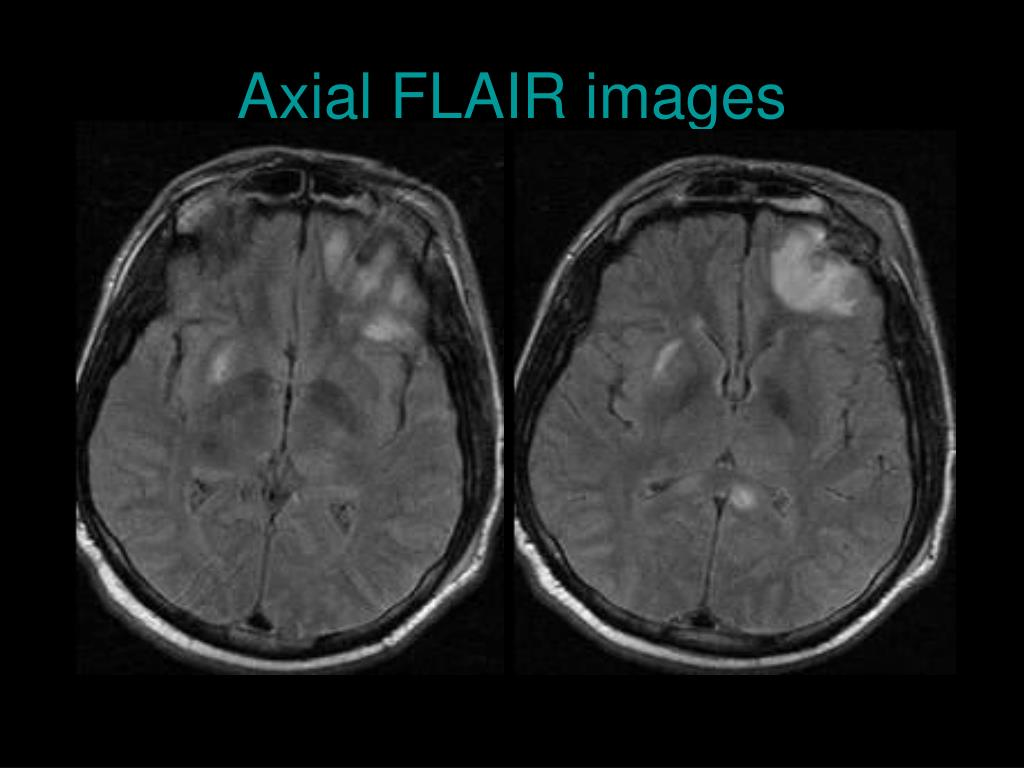 Axial FLAIR images