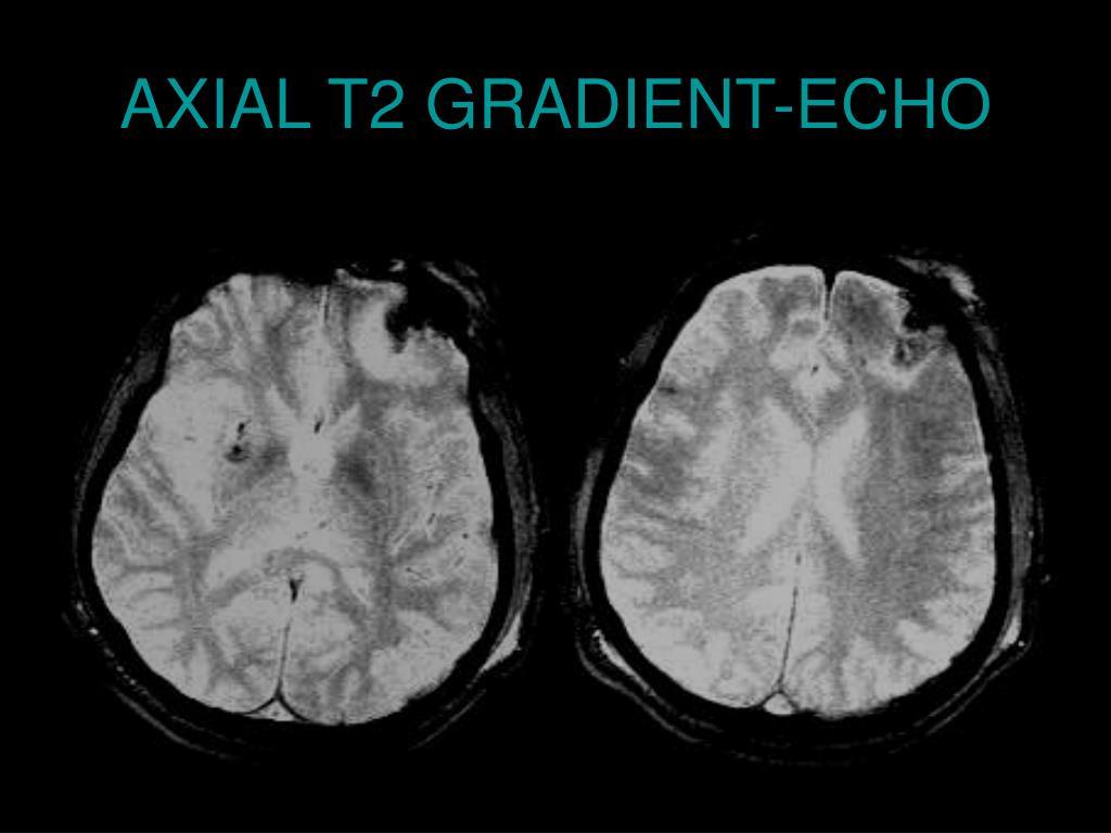 AXIAL T2 GRADIENT-ECHO