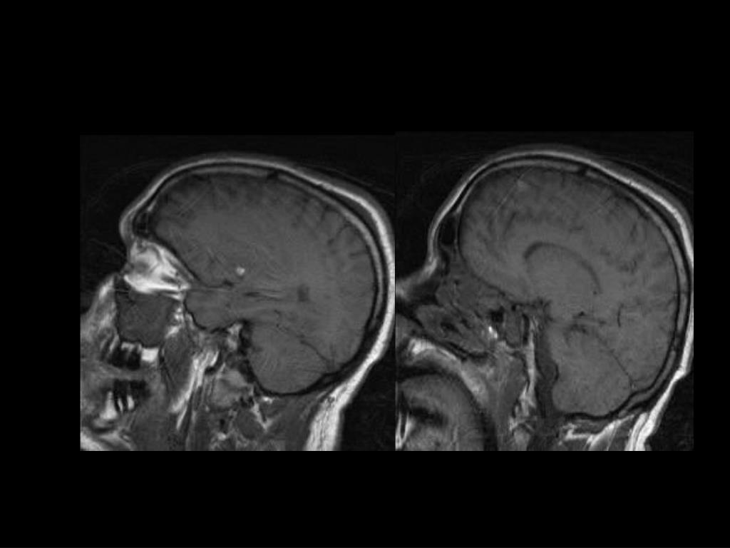 Sagittal T1-W images