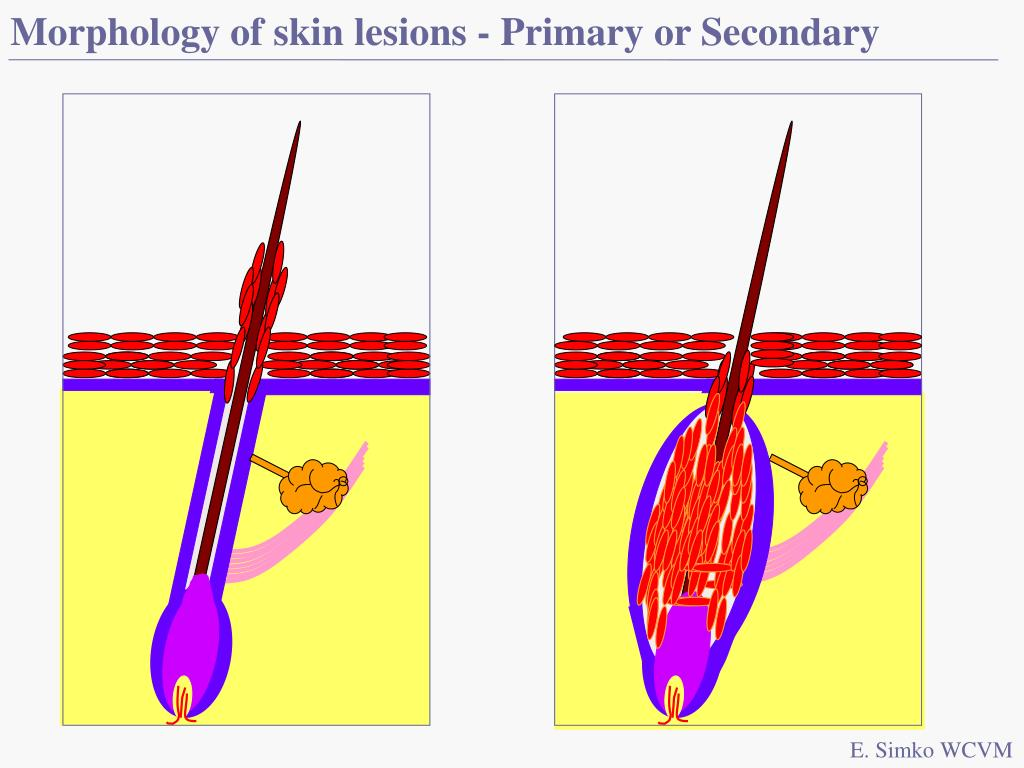 Morphology of skin lesions - Primary or Secondary