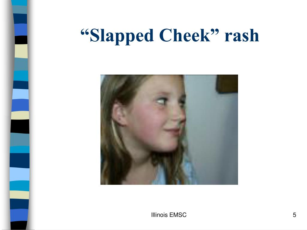 """Slapped Cheek"" rash"