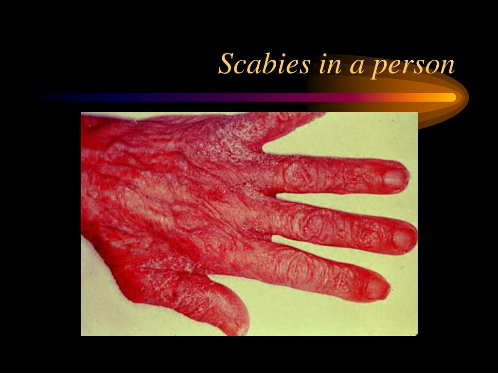 Scabies in a person