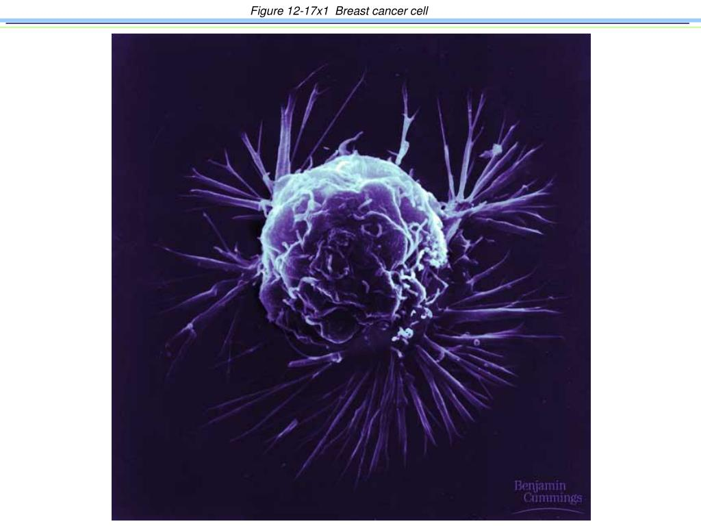 Figure 12-17x1  Breast cancer cell