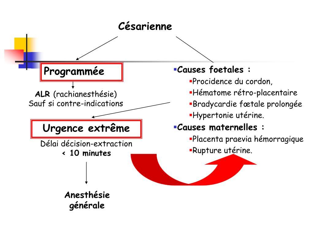 Causes foetales :