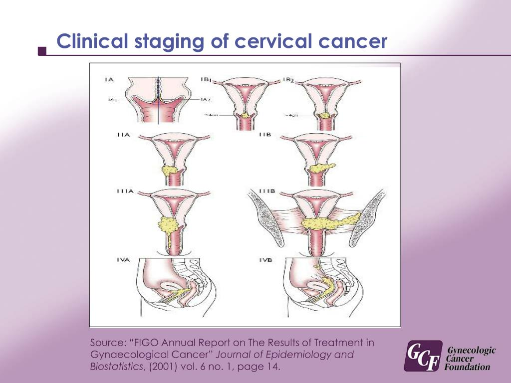 Clinical staging of cervical cancer