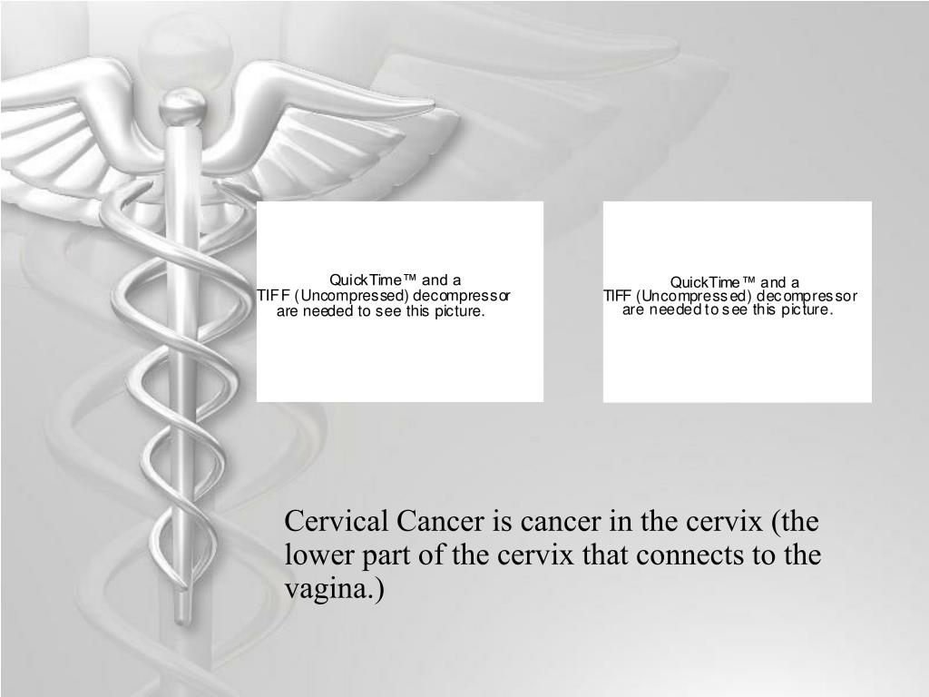 Cervical Cancer is cancer in the cervix (the lower part of the cervix that connects to the vagina.)