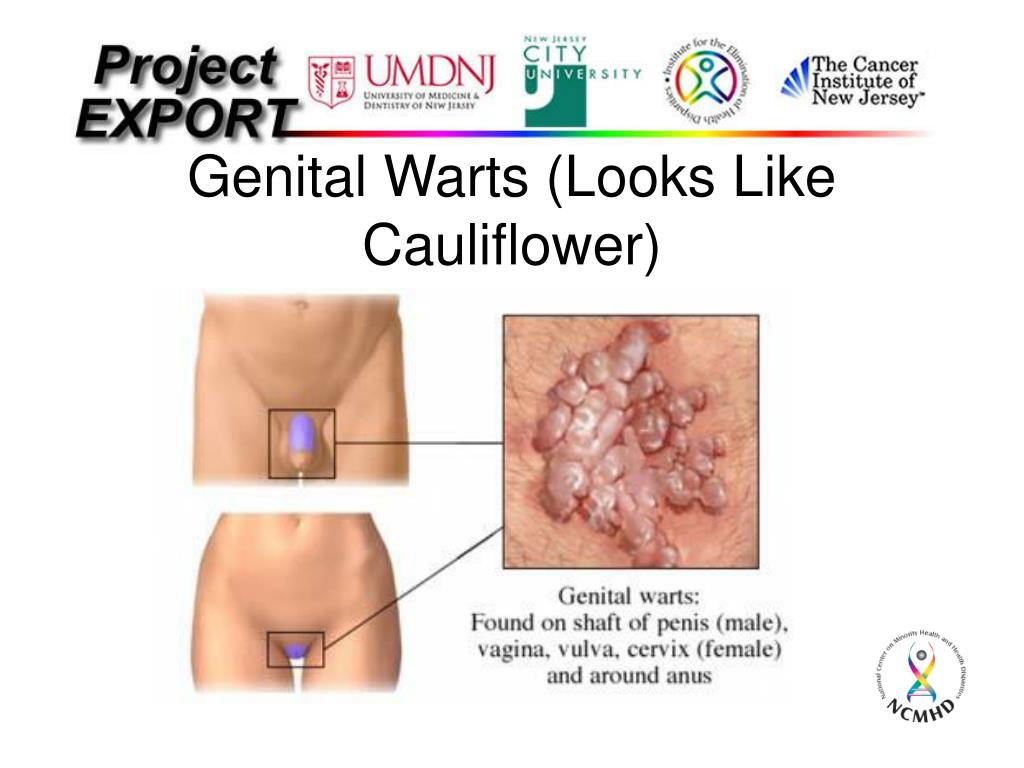 Genital Warts (Looks Like Cauliflower)