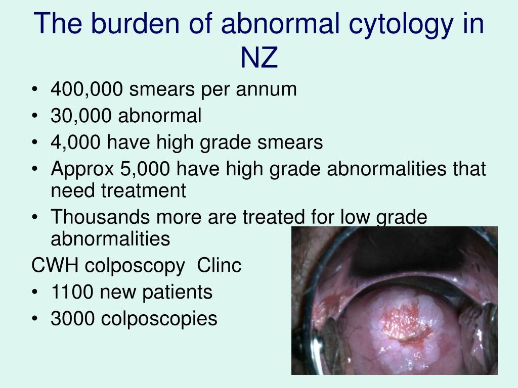 The burden of abnormal cytology in NZ