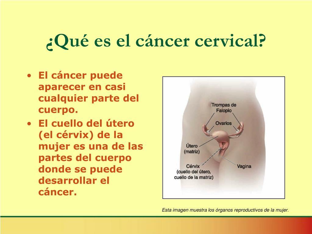¿Qué es el cáncer cervical?