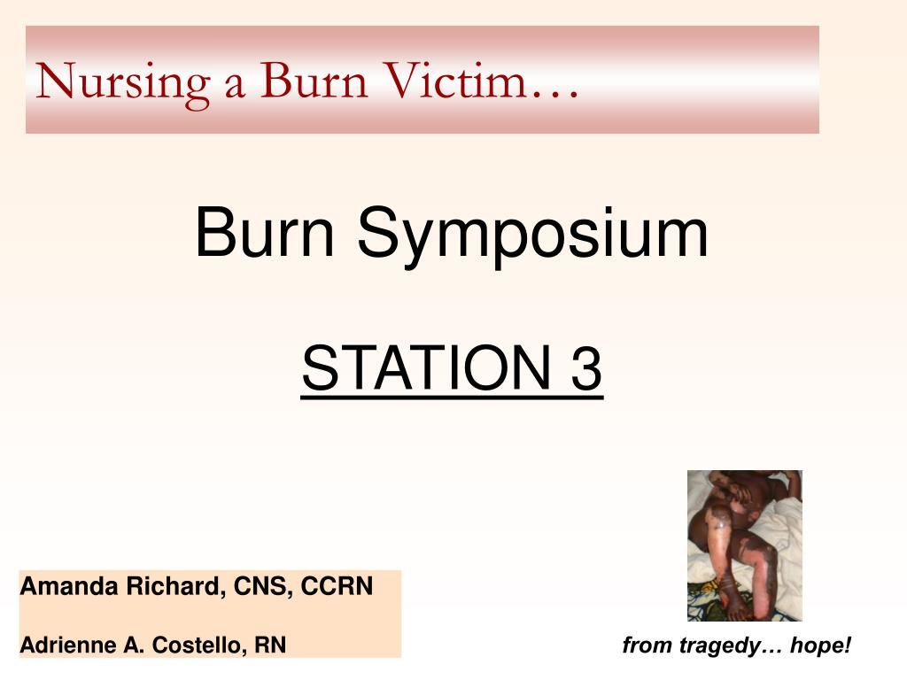 nursing a burn victim
