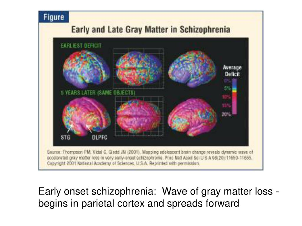 Early onset schizophrenia:  Wave of gray matter loss -