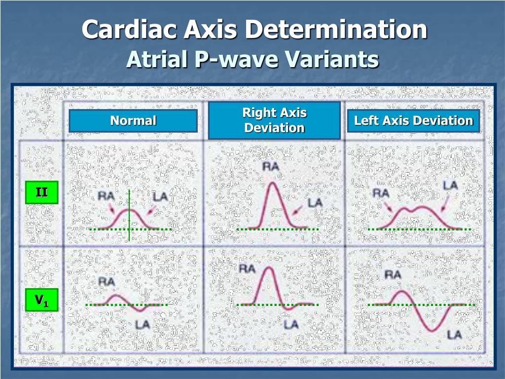 Atrial P-wave Variants