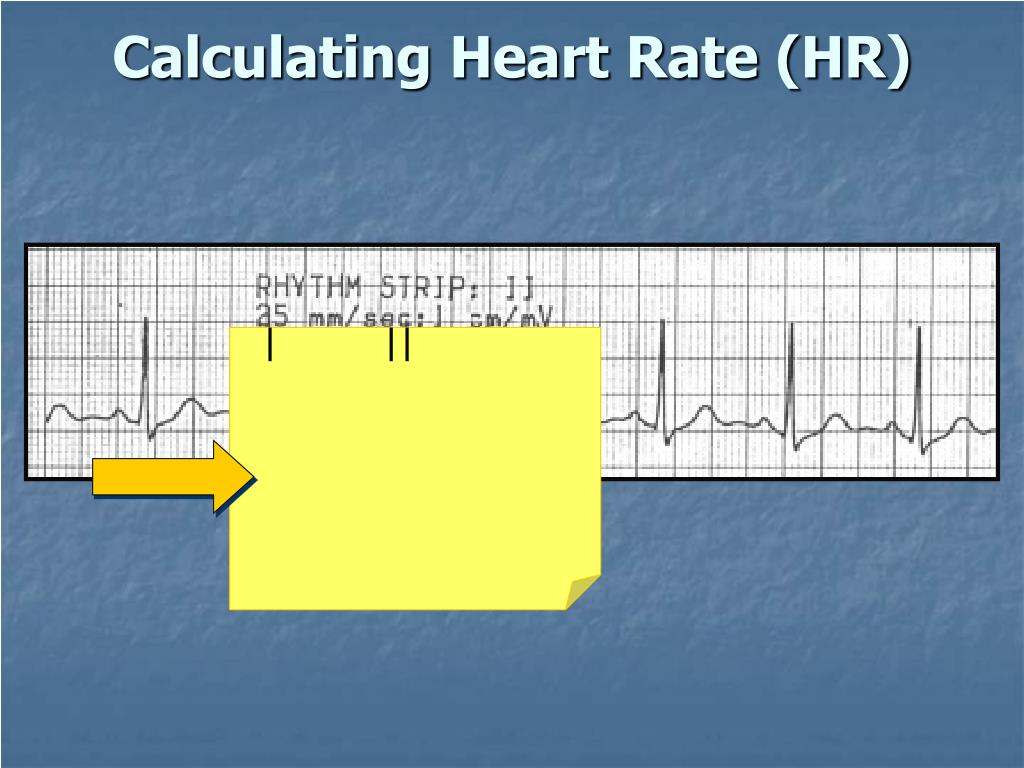 Calculating Heart Rate (HR)