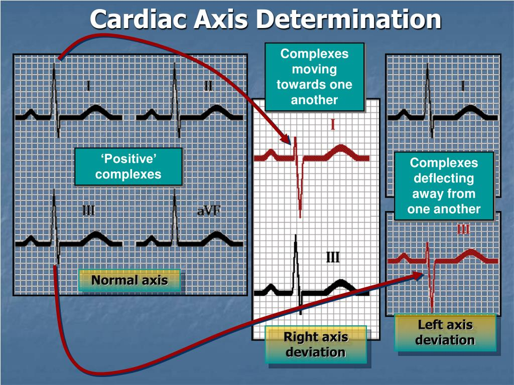 Cardiac Axis Determination