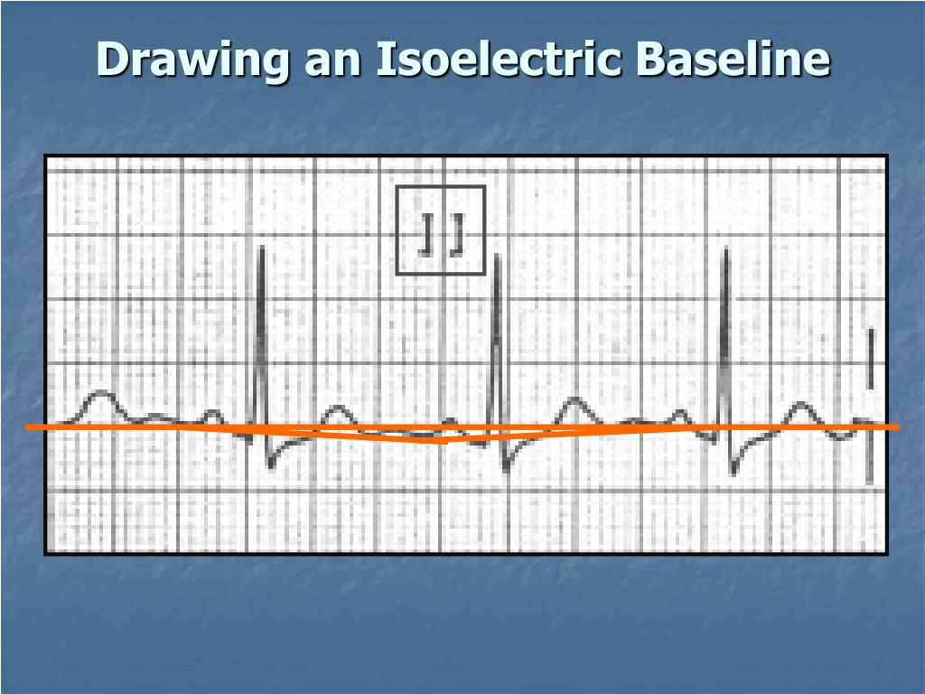 Drawing an Isoelectric Baseline