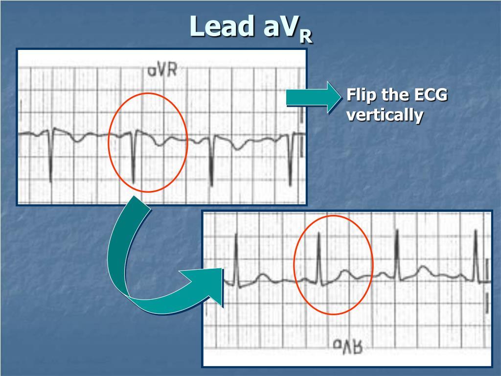 Lead aV
