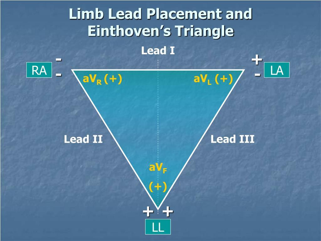 Lead I