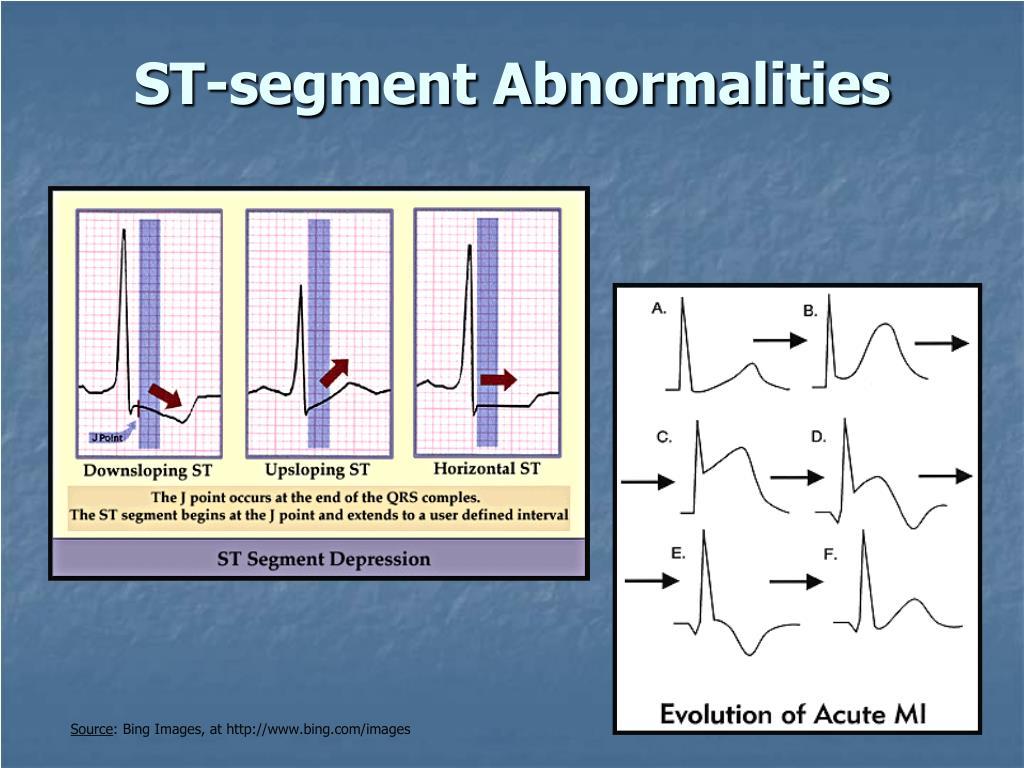ST-segment Abnormalities