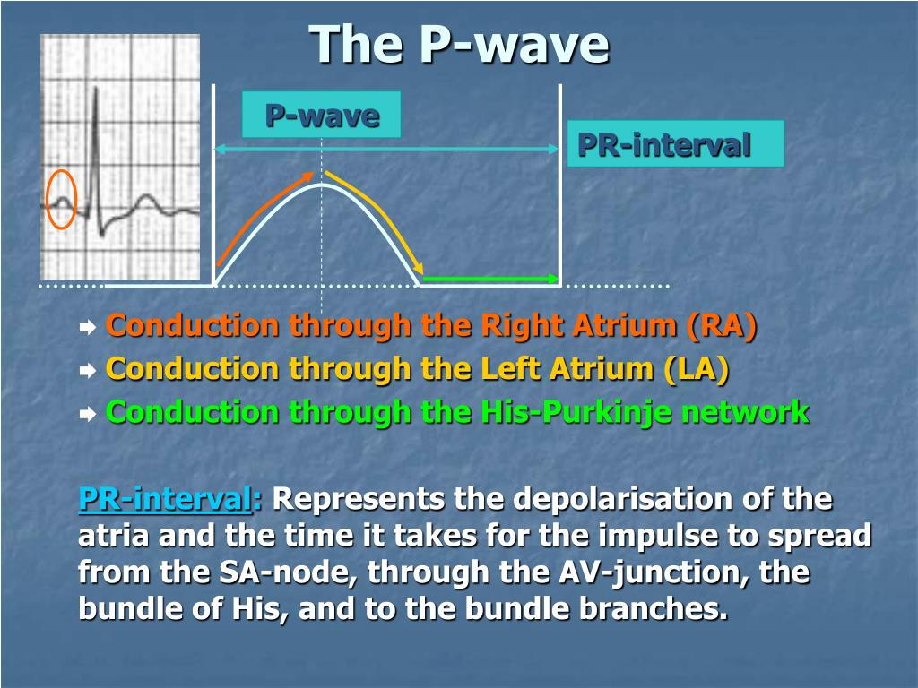 PR-interval