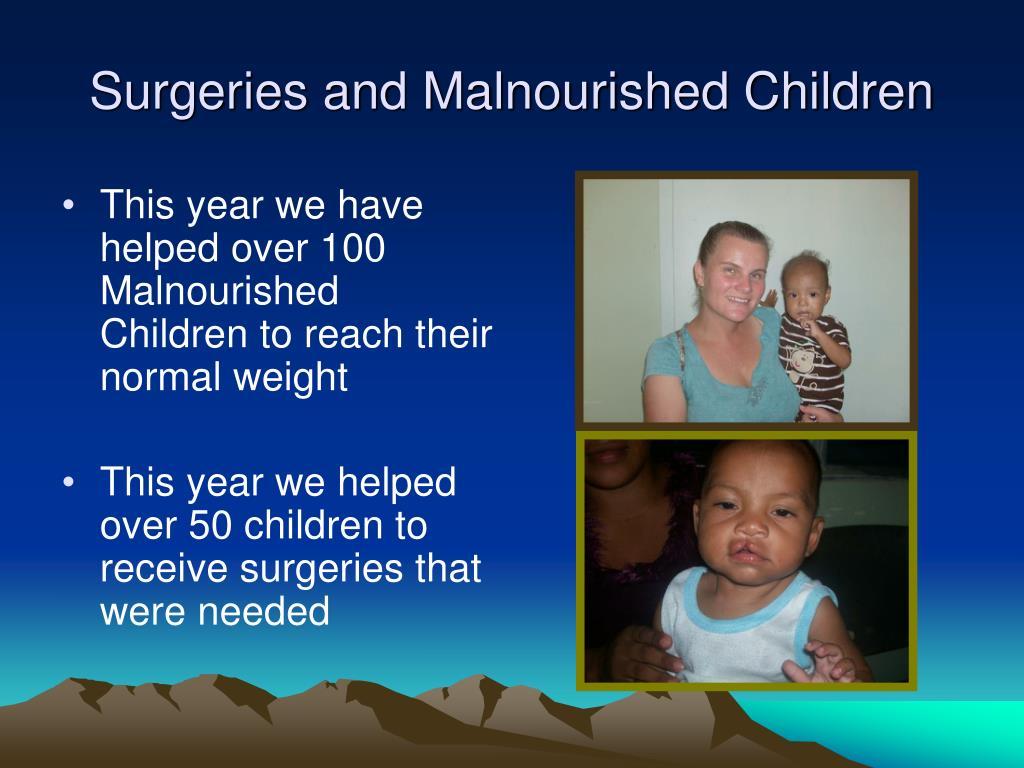Surgeries and Malnourished Children
