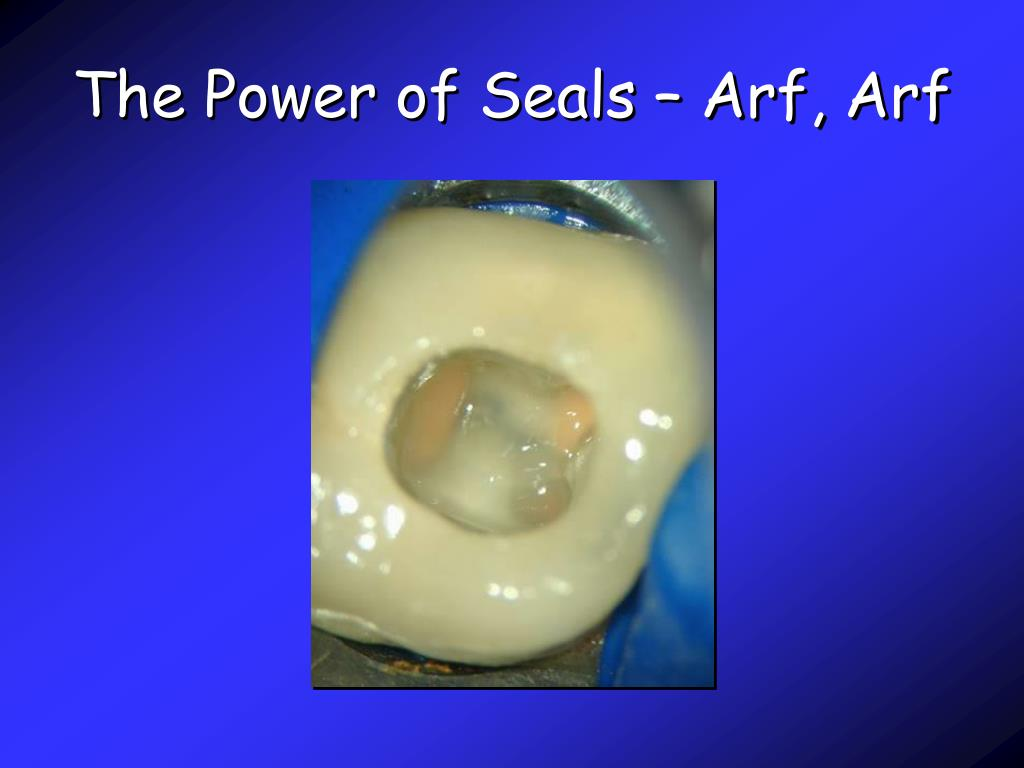 The Power of Seals – Arf, Arf