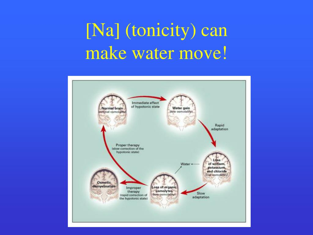 [Na] (tonicity) can