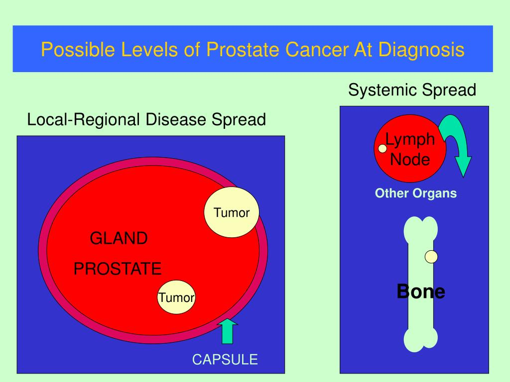 Possible Levels of Prostate Cancer At Diagnosis