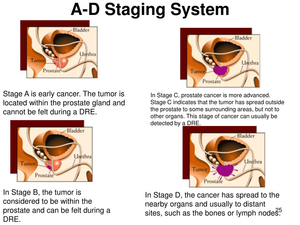 A-D Staging System