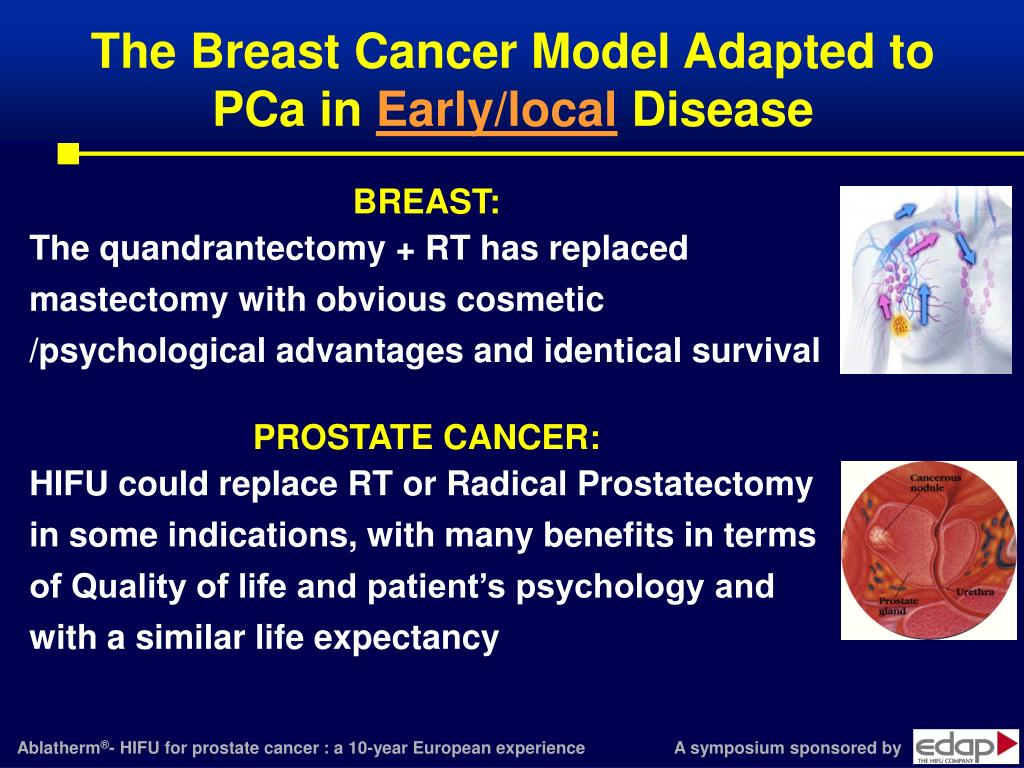 The Breast Cancer Model Adapted to PCa in