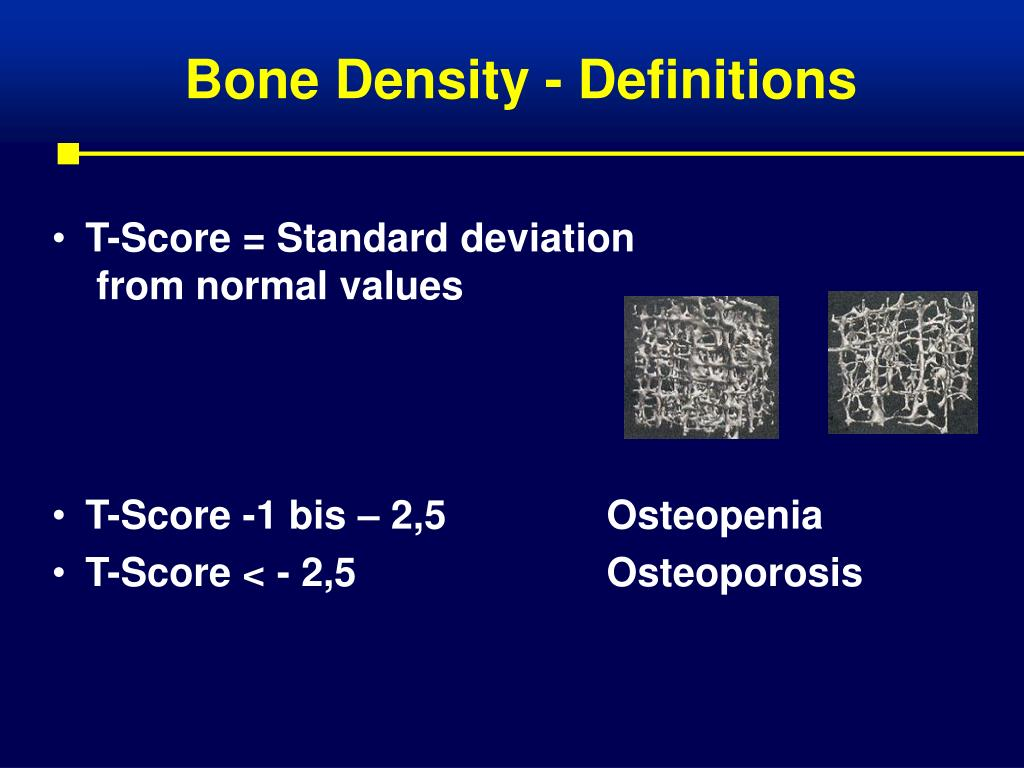 Bone Density - Definitions