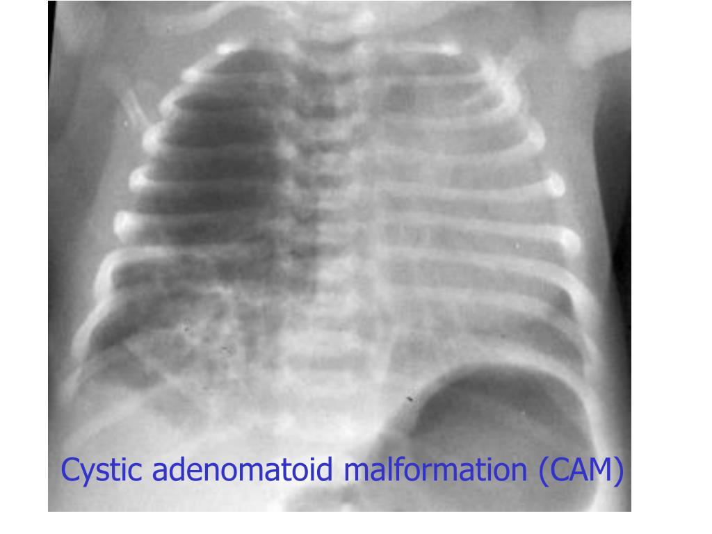 Cystic adenomatoid malformation (CAM)