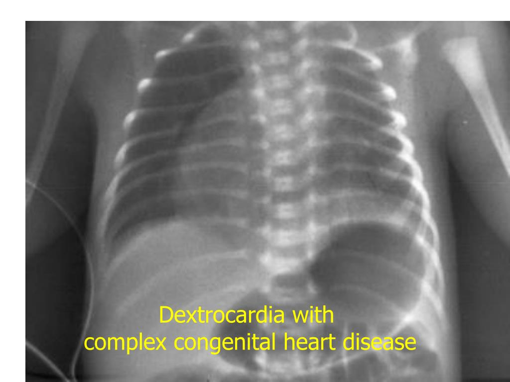 Dextrocardia with