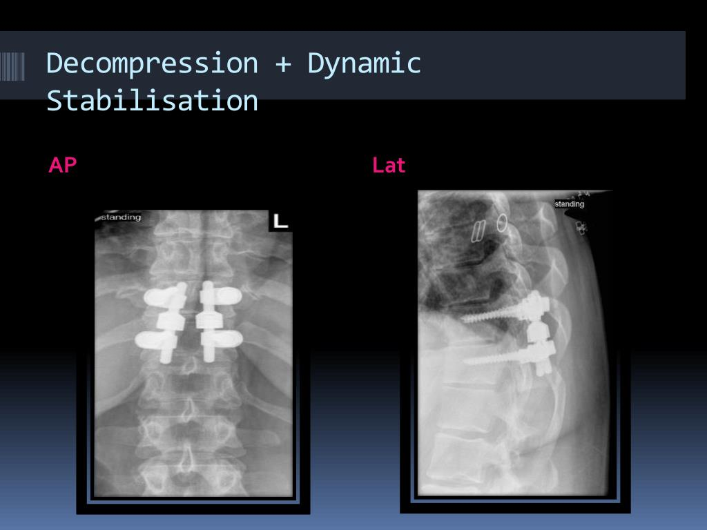 Decompression + Dynamic Stabilisation