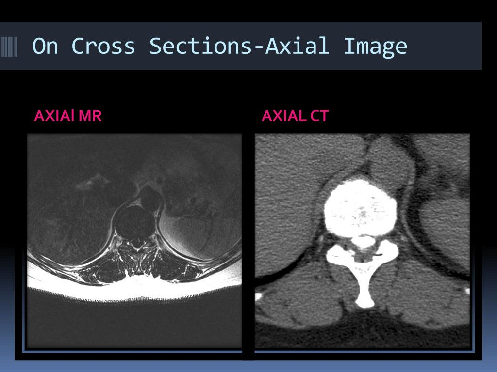 On Cross Sections-Axial Image