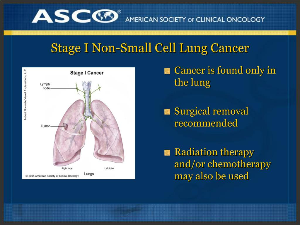 Stage I Non-Small Cell Lung Cancer