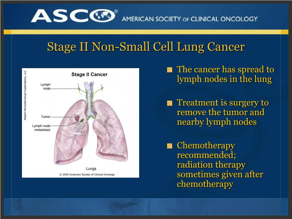 Stage II Non-Small Cell Lung Cancer