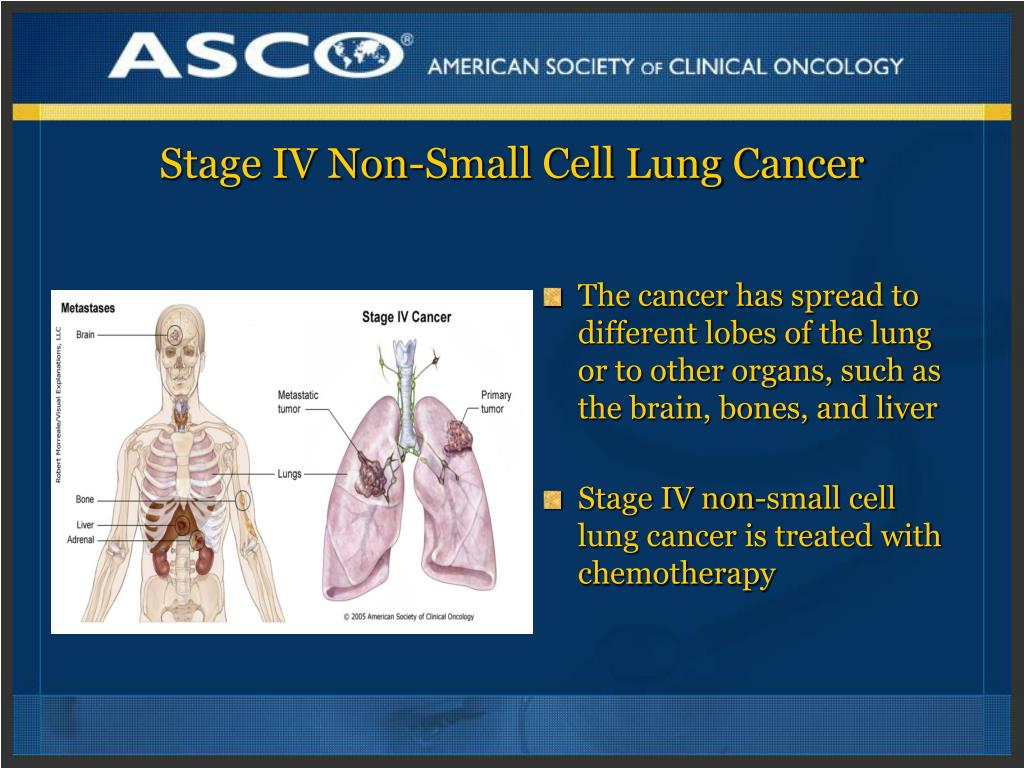 Stage IV Non-Small Cell Lung Cancer