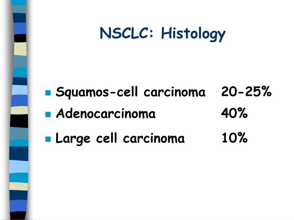 NSCLC: Histology