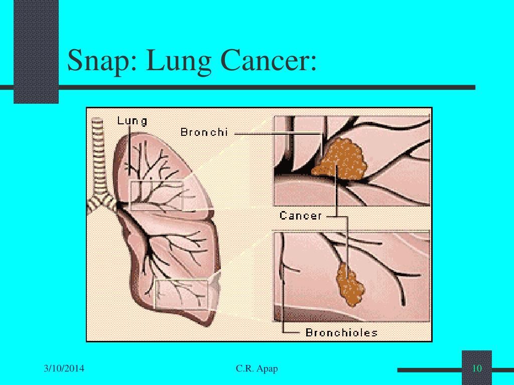 Snap: Lung Cancer: