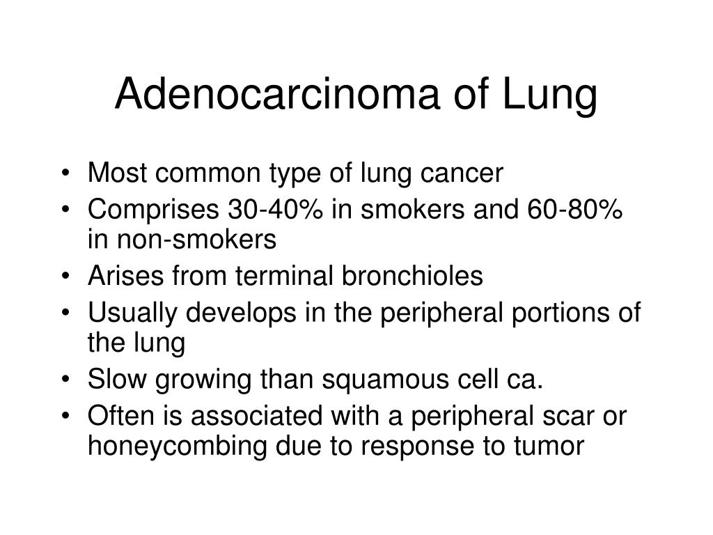 Adenocarcinoma of Lung