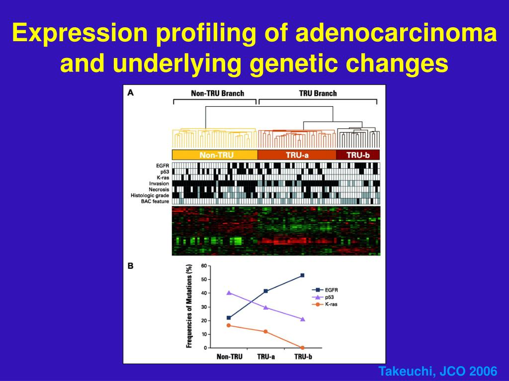 Expression profiling of adenocarcinoma