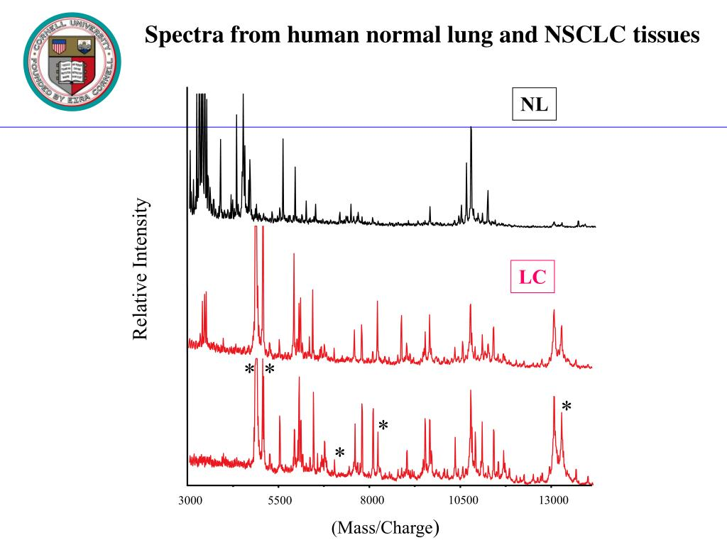Spectra from human normal lung and NSCLC tissues