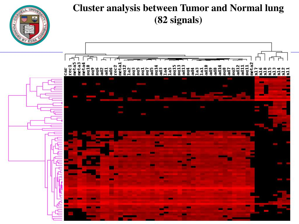 Cluster analysis between Tumor and Normal lung