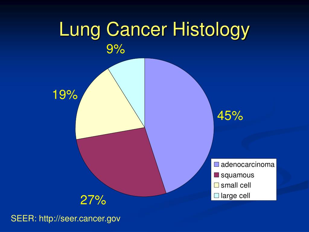 Lung Cancer Histology