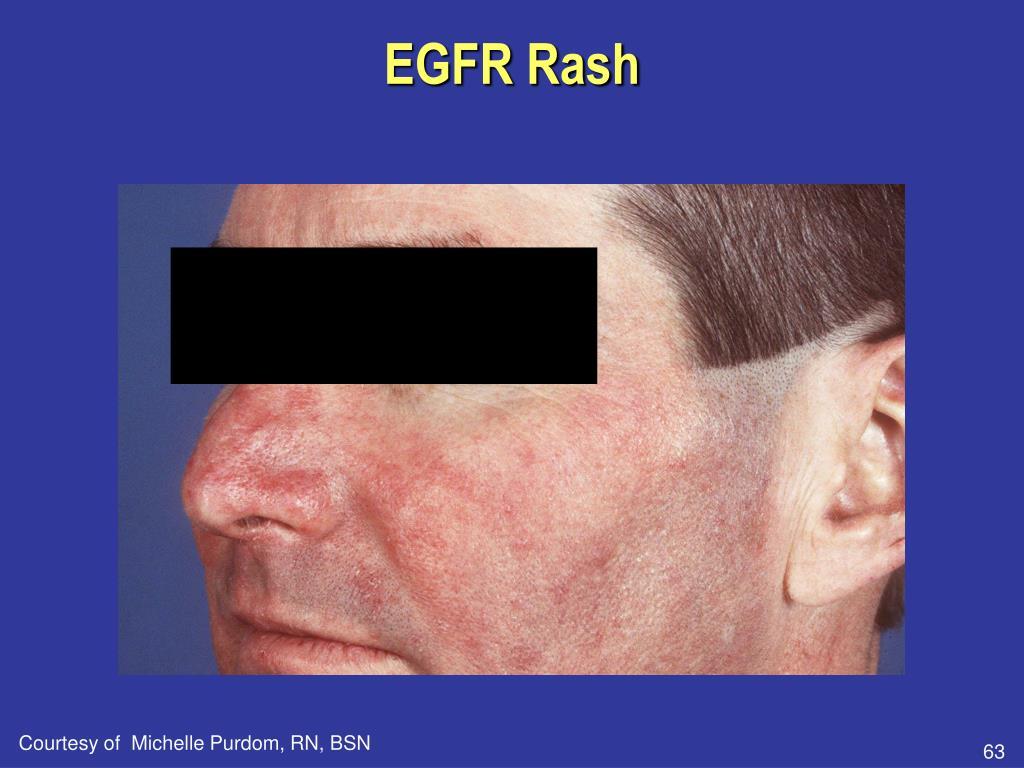 EGFR Rash