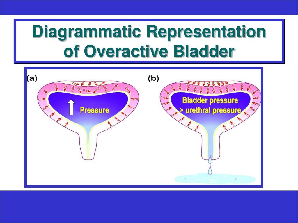 Diagrammatic Representation