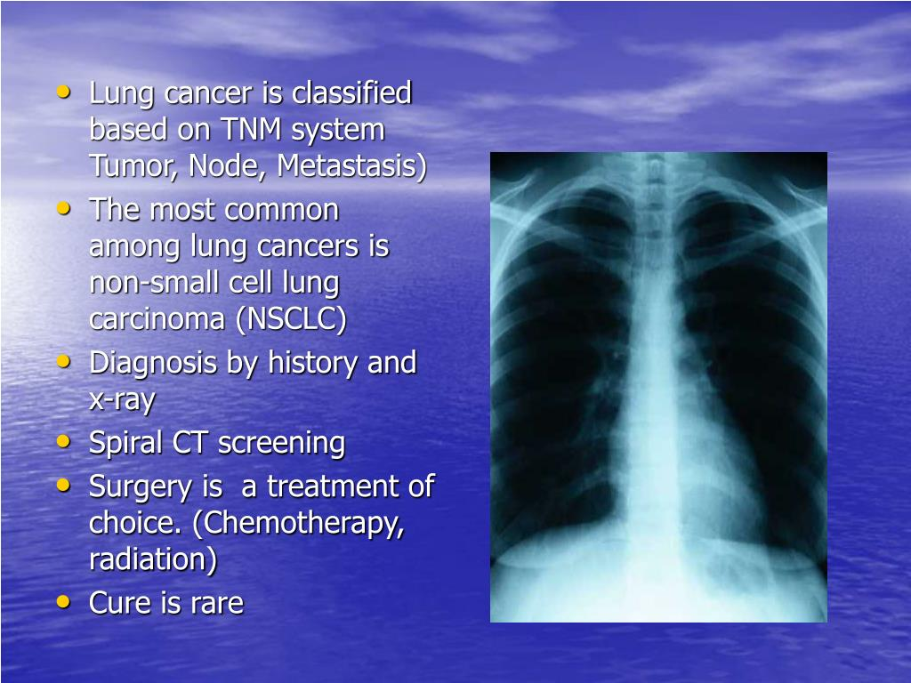 Lung cancer is classified based on TNM system Tumor, Node, Metastasis)
